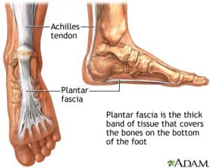 cause of plantar fasciitis